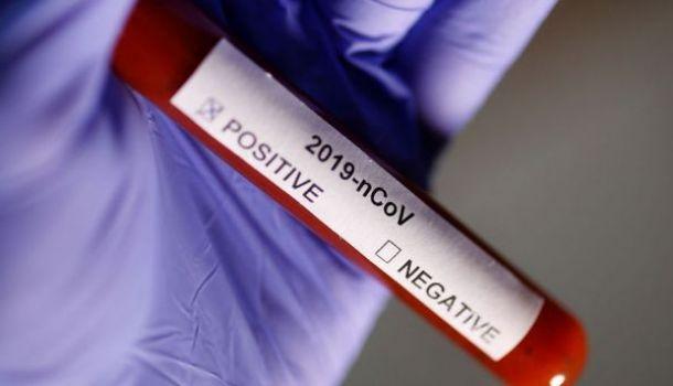 Daha 2 futbolçu koronavirusa yoluxdu